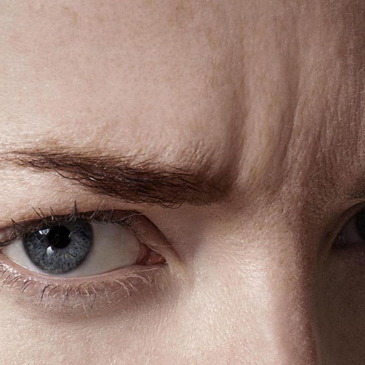 eliminar arrugas entrecejo