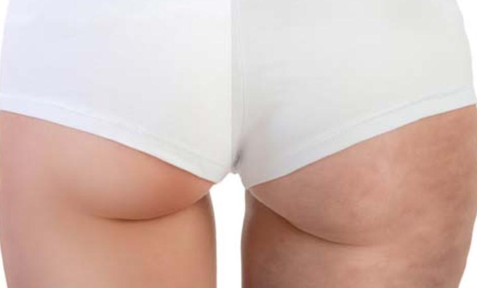 Celulitis: cómo eliminar de forma rápida en piernas y glúteos